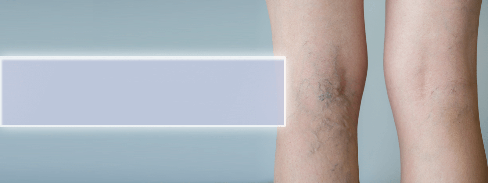Sclerotherapy Littleton