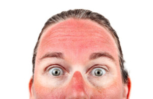 Sunburns Continue To Cause Damage Hours After Exposure